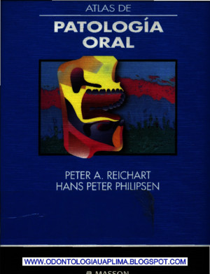Atlas de Patologia Bucal - Peter a Reichart